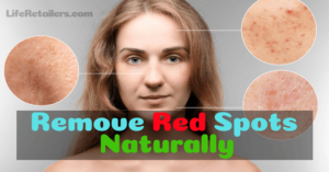 How to Remove or Get Rid of Red Spots on the Skin Naturally