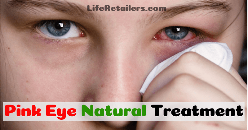 Natural Treatment of Conjunctivitis or Pink Eye with Home Remedies